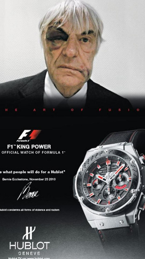 Ecclestone uses mugging bruises for sponsor advert